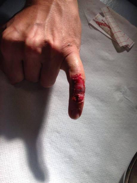 jari kelinking rossi terluka