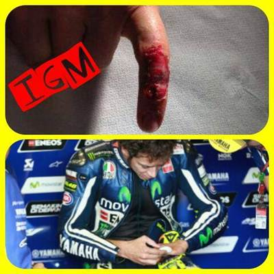 rossi broken little finger