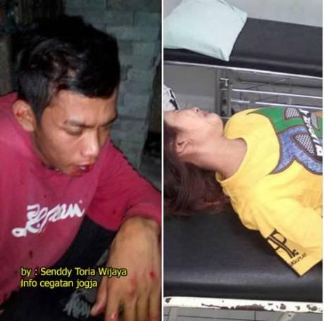 Ngerim,-Orang-mabuk-Naik-Motor-tabrak-Cewek-Sampai-Jari-Patah-di-Jogja-pertamax7.com
